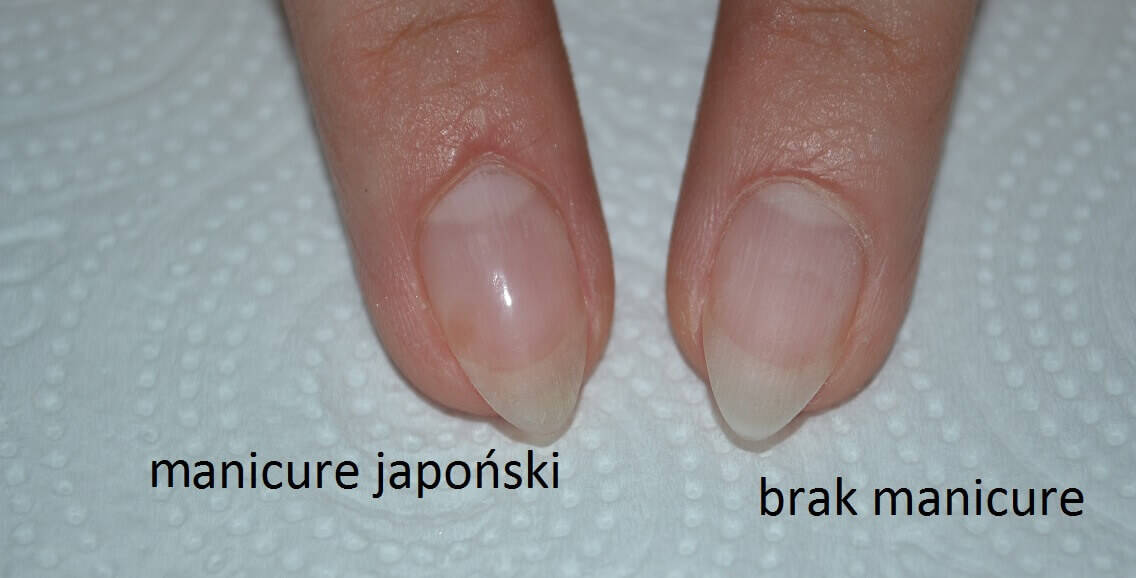 PS: Plamka na paznokciu po lewej, to uszkodzenie mechaniczne :)